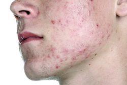 Сыпь на лице больного демодекозом